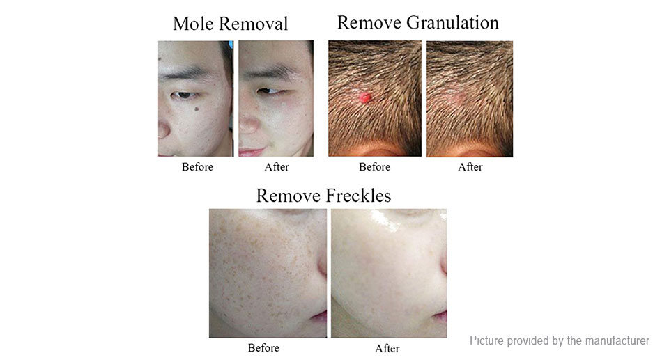 21 14 Free Shipping Mole Portable Rechargeable Mole Skin Tag